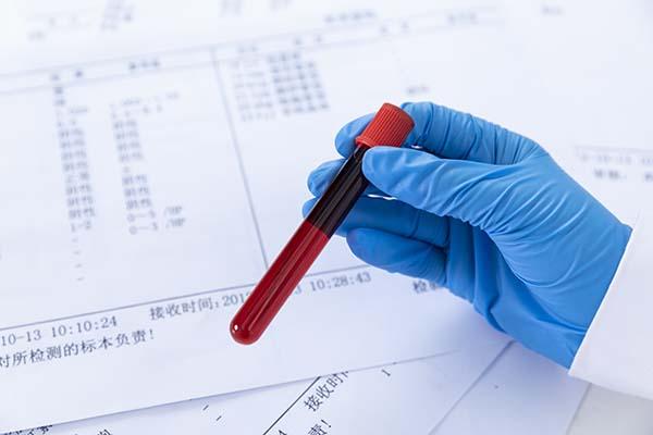 为什么要检测癫痫患者的血药浓度?